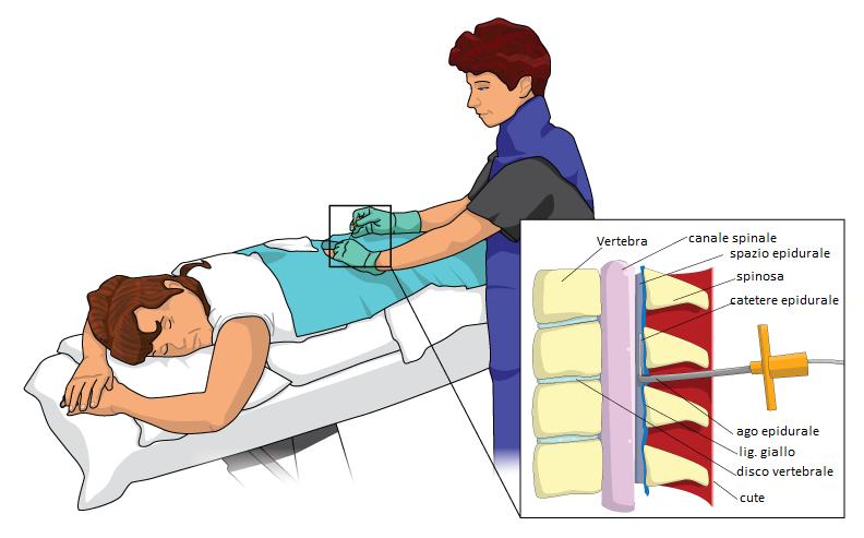 L'iniezione peridurale sacrale nella lombosciatalgia acuta: quali farmaci - Pathos